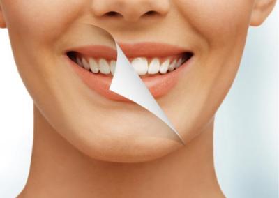 Wybielanie zębów lampą Prevdent